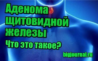 картинка Аденома щитовидной железы - что это такое